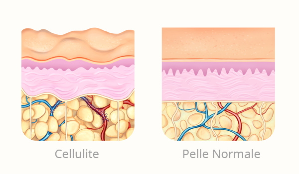 Cellulite - Physiosal